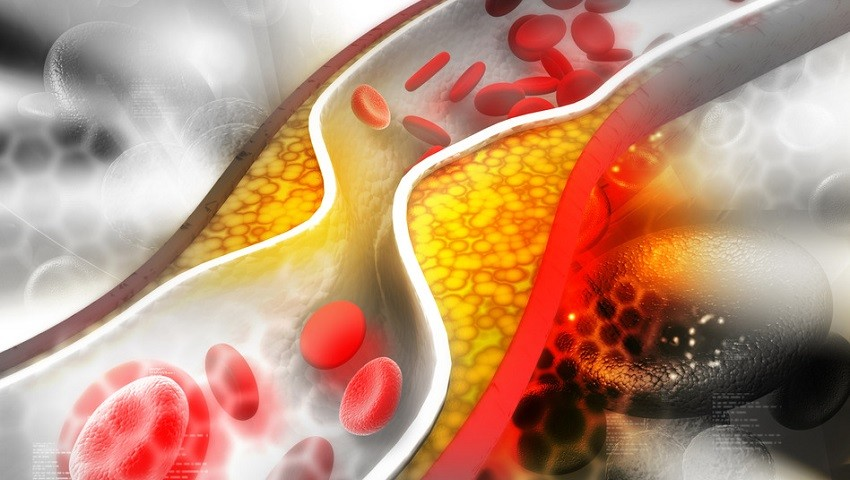 What effect does nitric oxide have on your muscles?