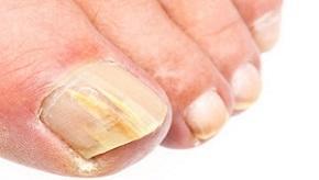 photo-of-toenail-fungus.jpg