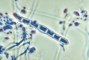 photo-of-dermatophytes.jpg